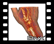 Hand - DivX: Context-Preserving Volume Rendering of a human hand
