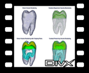Tooth - DivX: comparison of Context-Preserving Volume Rendering with other techniques