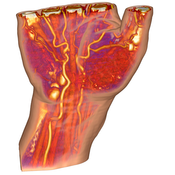 image: Context-Preserving Volume Rendering of a human hand