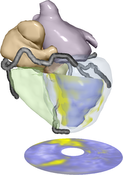 image: 3D model of the heart annotated with viability data