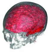 CT-MRI: Multimodal Visualization of CT and MRI