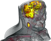 CT-PET: Multimodal Visualization of Neck Tumor