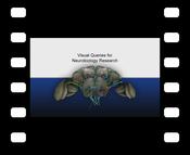Video: Video demonstration of the BrainGazer system (DivX codec)