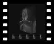 Video 1: Animation sequence comparing DVR, MIDA, and MIP applied to a MRI scan
