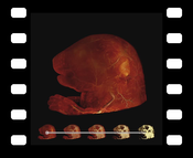 Video 2: Animation sequence comparing DVR, MIDA, and MIP applied to an Ultramicroscopy scan of a mouse embryo