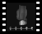 Video 4: Animation sequence comparing DVR, MIDA, and MIP applied to a CT scan