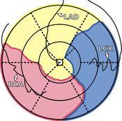 image: patient-specific bulls eye plot