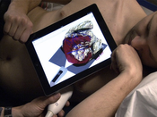 Teaser: Real-time visual guidance for ultrasound examinations on an iPad