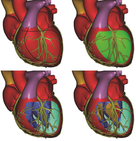 image: Occlusion-aware generation of a cutaway illustration.